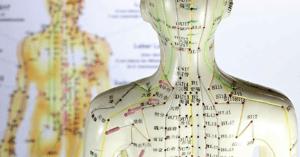 acupuncture-model-miami-florida