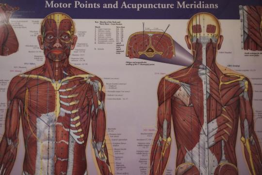 Western-Acupuncture-Model-Poster