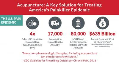 acupuncture-treatment-opioids