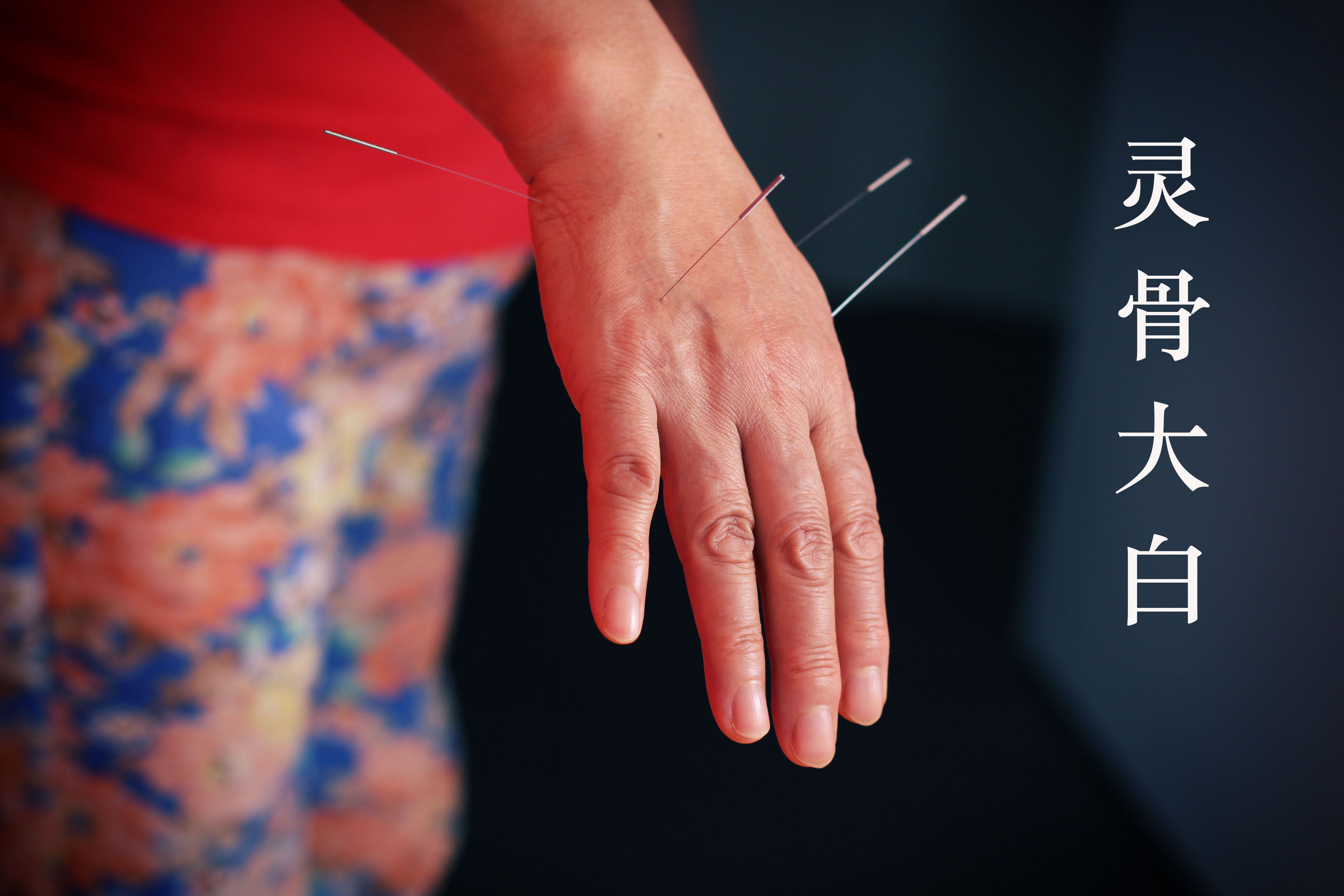 Acupuncture on the hand