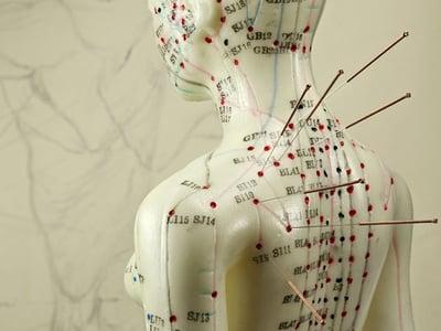 acupuncture-model-tcm