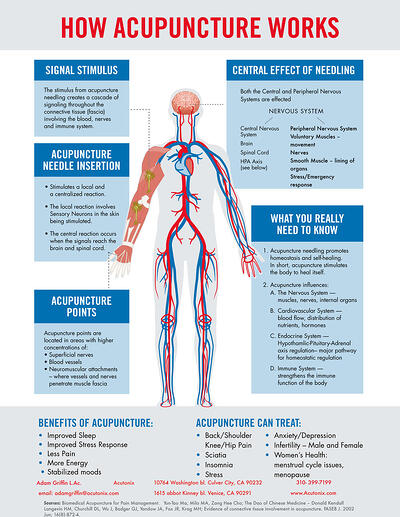 acupuncture-treats-infographic