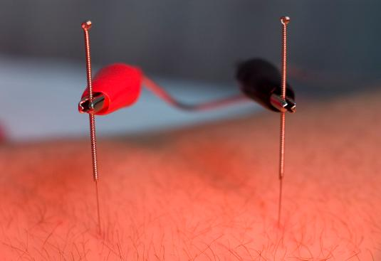 Electroacupuncture Dual-Needles