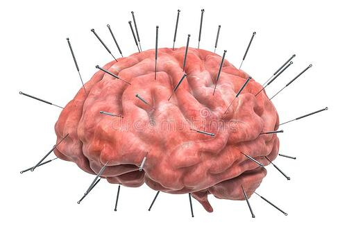 acupuncture-brain
