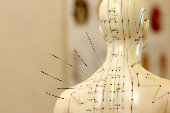 acupuncture_may_help_ease_psychological_symptoms_720.jpg
