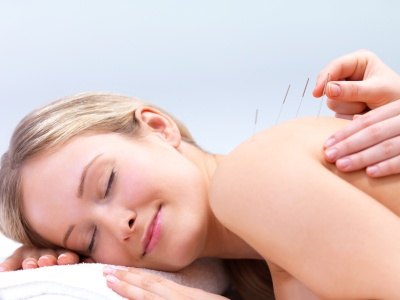 Acupuncture for the Back