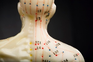 Is Acupuncture School Right For You?