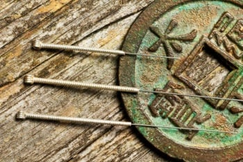 what-to-expect-in-acupuncture-school