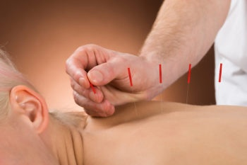 natural-treatment-for-ptsd-acupuncture