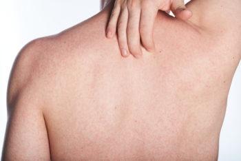 natural-eczema-treatment