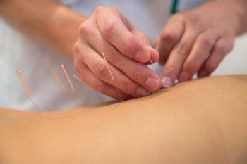 degree-in-acupuncture